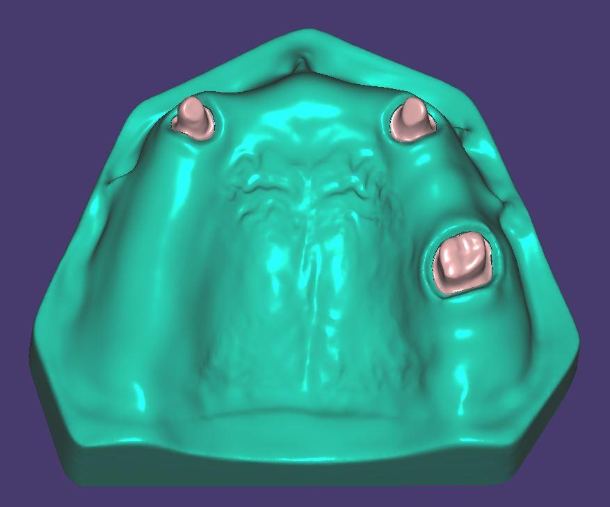M016 Zweifarbig gedruckt mit herausnehmbaren Zahnstümpfen.