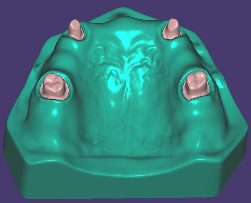 M017 Zweifarbig gedruckt mit herausnehmbaren Zahnstümpfen.