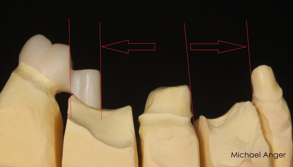 Likewise, it may be useful to insert bridge splits to compensate for the inherent mobility of the lower jaw in itself or to compensate for the different kinetics or mobility in the blocking of implants with natural teeth.