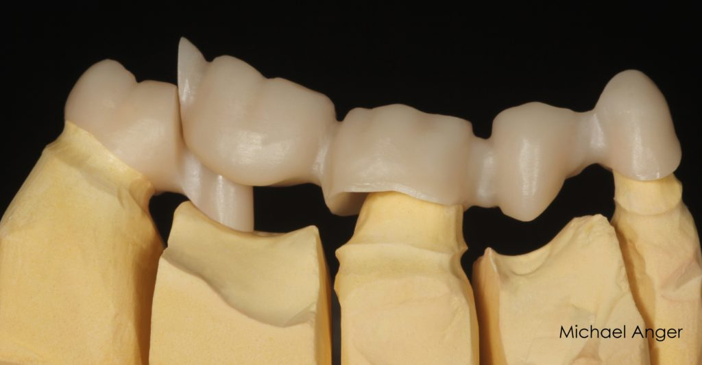 The occlusal support should be as close as possible to the rear crown. Above the attachment pin, there should be some clearance to avoid tilting movement on the abutment, avoiding overloading of the abutment and a break.