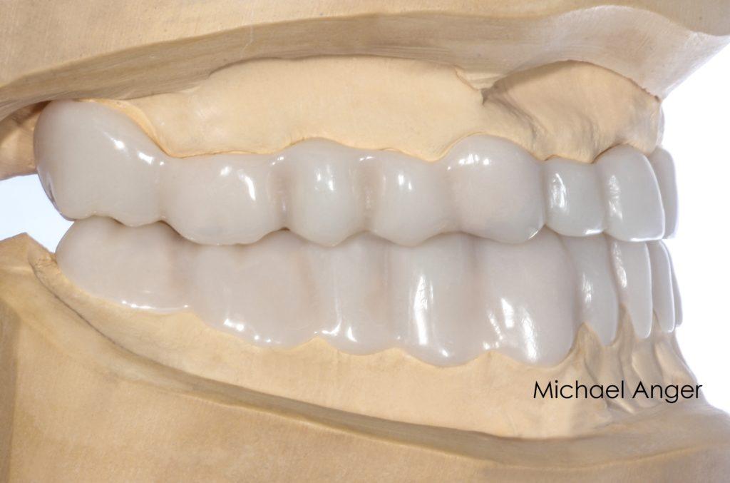 Mit diesen Schienen kann der Patient sich an die neue Bisshöhe und Bisslage gewöhnen.