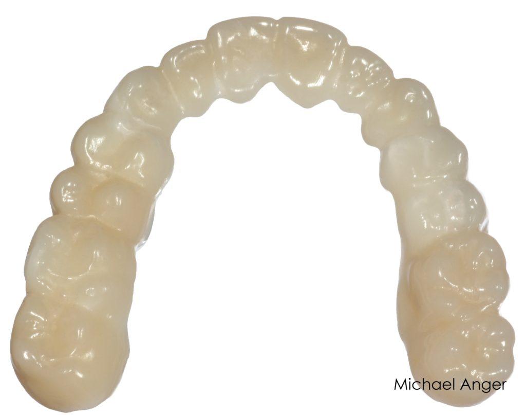 Mit CAD/CAM-Techniken wurden anatomische Aufbissschienen aus zahnfarbenem Polycarbonat hergestellt.