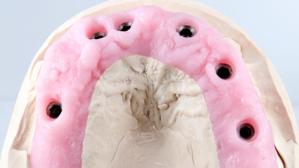 Zahnfleischmasken 3