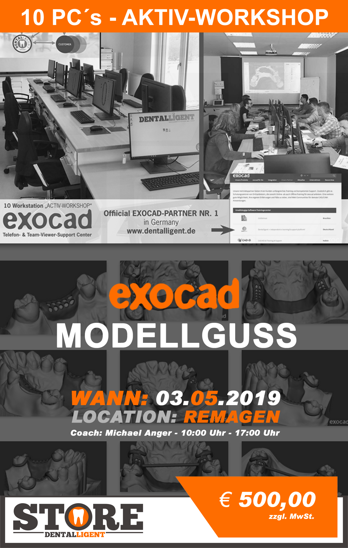 Exocad-Modellguss  by Michael Anger - 10 PC´s AKTIV WORKSHOP - in REMAGEN
